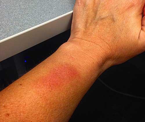Kettlebell wrist bruises