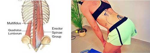 multifidus spine erector
